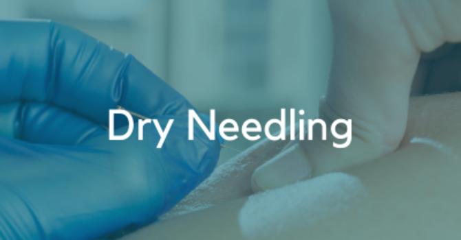 Dry Needling Treatments